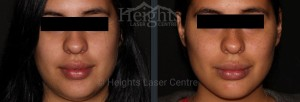 Filllers for Lips and Cheeks Vancouver