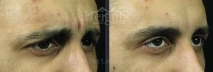 Vancouver Botox frown line treatment before and after