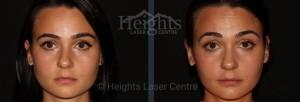 Vancouver medical spa facial rejuvenation