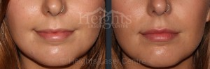 before and after lip enhancement vancouver