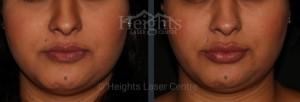 Vancouver medical spa lip enhancement