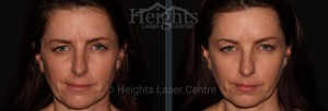 before and after botox vancouver