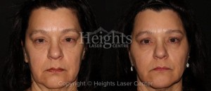 before and after facial rejuvenation vancouver