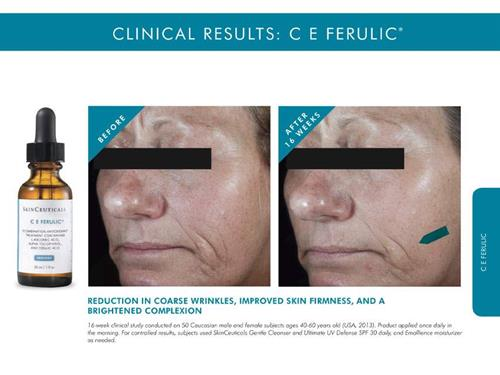 Before and after C E Ferulic Vancouver Skinceuticals